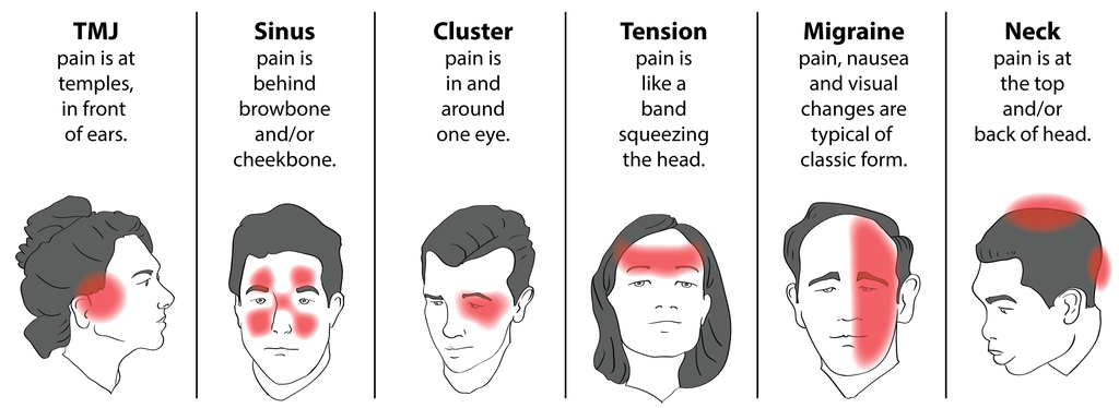 what causes headaches behind the eyes