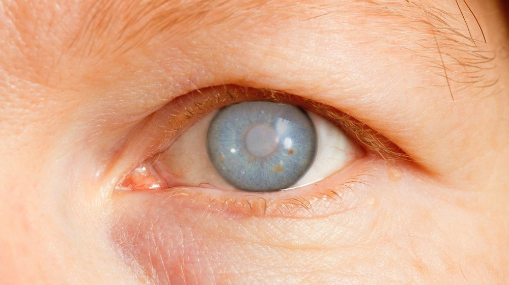 common eye ailments and defects
